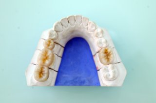 Full-contour zirconia case 1