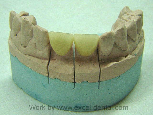 Dental Lab Dental Laboratory Located In Bangkok